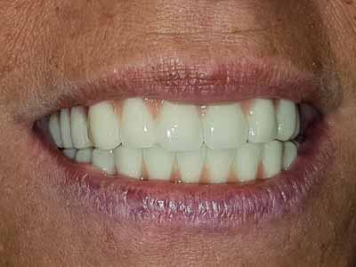 Restauration dentaire pour dechaussement dentaire