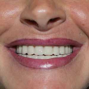 Un sourire de femme