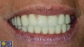 dechaussement dent parodontite