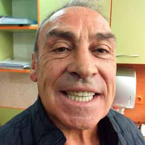 implant basal bredent bulgarie