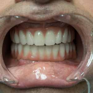 Restauration dentaire complète avec implant basal