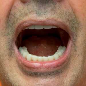 Implant basal pour restauration dentaire complète